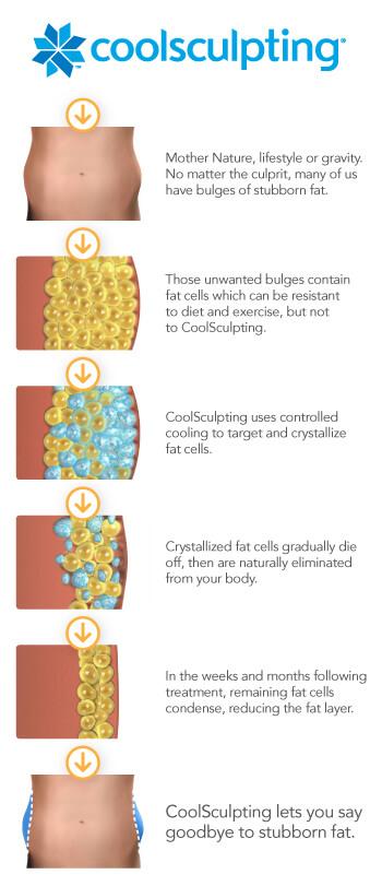 CS Illustrative Process