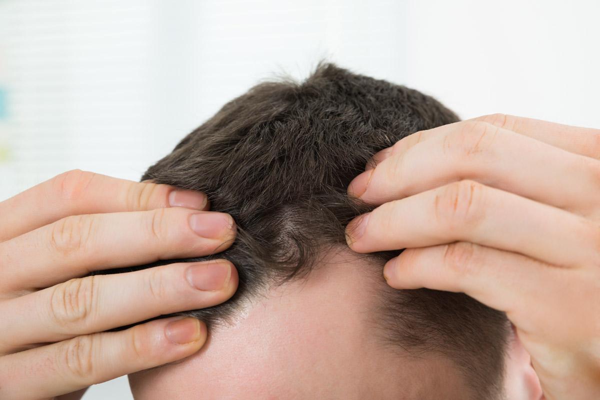 Hair Loss Chicago