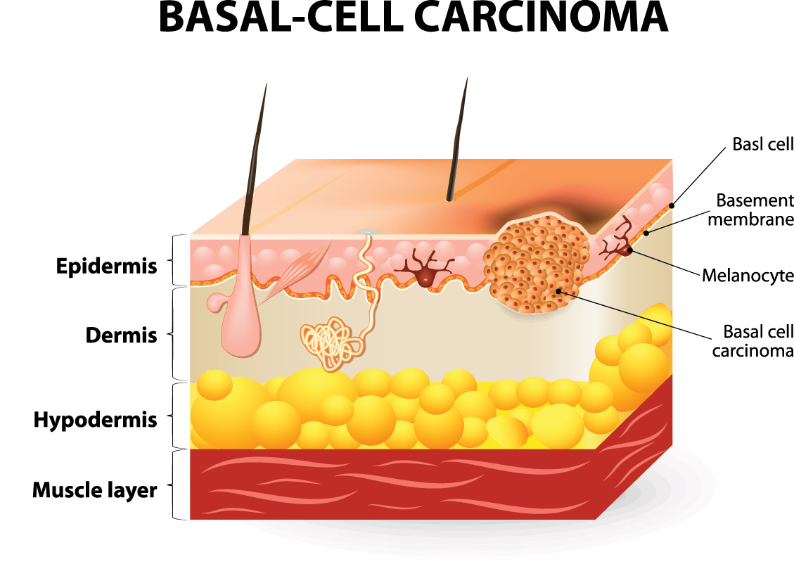 Basal-Cell Carcinoma Chicago