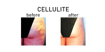 Cellulite Chicago