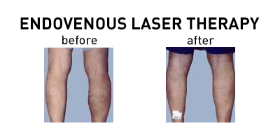 Endovenous Laser Therapy Chicago