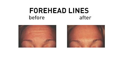 Forehead Lines Before and After Chicago
