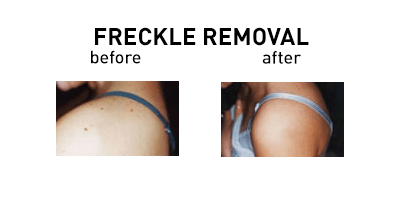 Freckles Removal Chicago