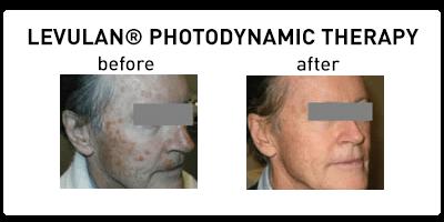 Levulan Photodynamic Therapy Oakbrook Terrace