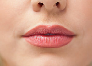 lip-enhancement-300x218