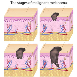 The Stages of Malignant Melanoma Chicago