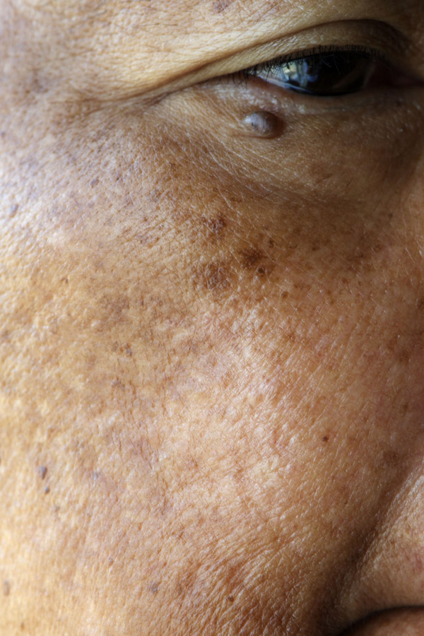 Melasma Chicago