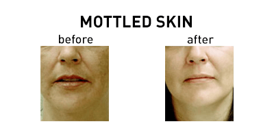 Mottled Skin Chicago