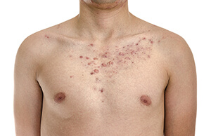 Pityriasis Rosea Chicago