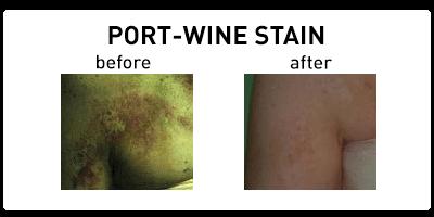 Port-Wine Stain Chicago