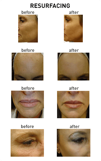 Laser Resurfacing Chicago