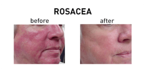 Rosacea Chicago