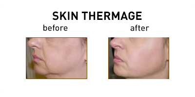 Thermage Skin Tightening Chicago