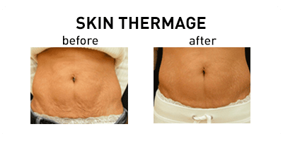 Skin Thermage Oakbrook Terrace
