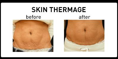 Skin Thermage Oakbrook Terrace