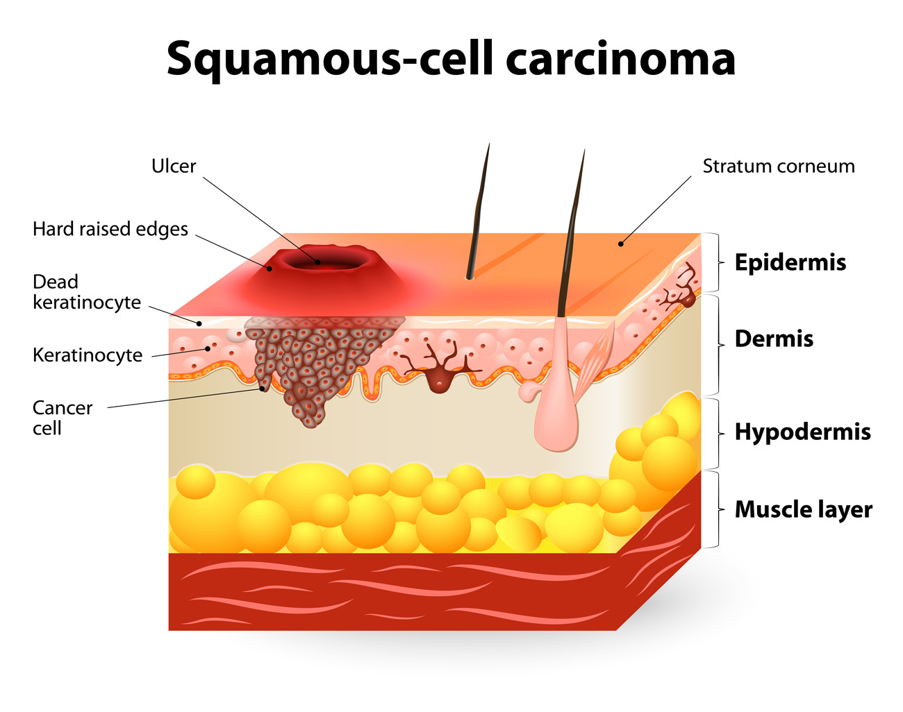 Squamous-Cell Carcinoma Chicago