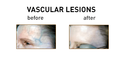 Vascular Lesions Chicago
